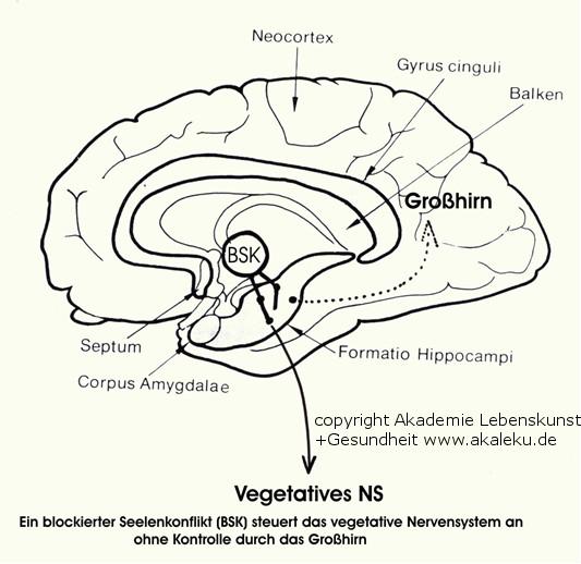 blockiertes Gehirn